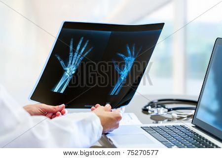 Doctor Hands Holding X Ray At Desk.