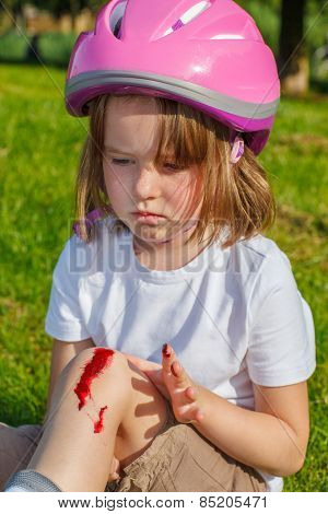 Portrait of an unhappy girl in protective helmet with her knee bleeding