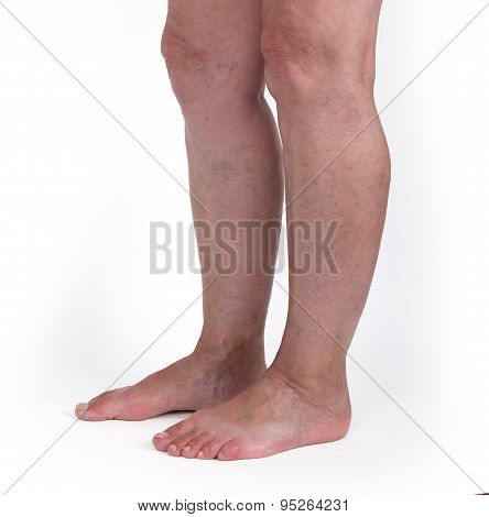 Old Woman With Varicose Veins