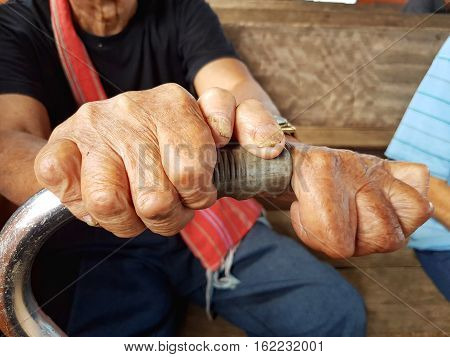 closeup hands of asian old man holding cane suffering from leprosy Thailand