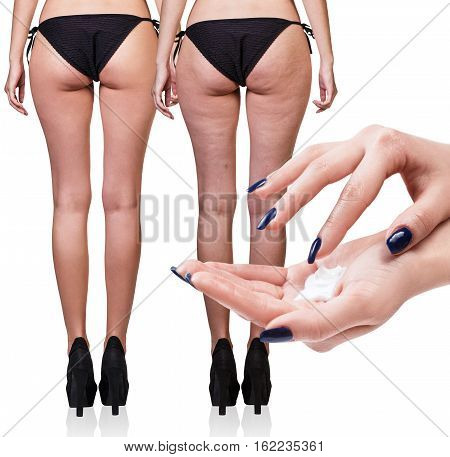 Hands applying cosmetic cream from cellulite on the buttocks isolated on white background