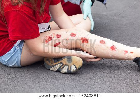 First aid training. Simulation of leg injury.