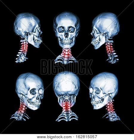 CT scan and 3D image of skull and neck . Use this image for cervical spondylosis , spondylolisthesis , spondylitis , spine trauma condition .
