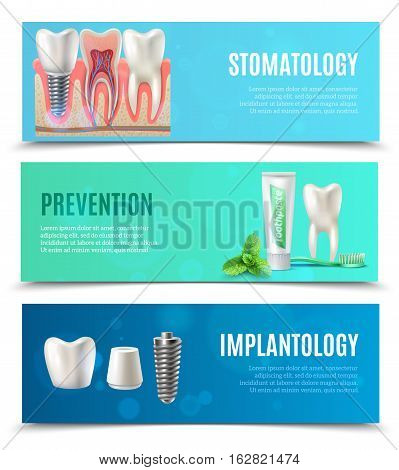 Medical oral healthcare 3 horizontal banners set with prevention stomatology and dental implants bookmarks isolated vector illustration