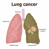 Illustration of a Malignant Tumor - Lung Cancer poster