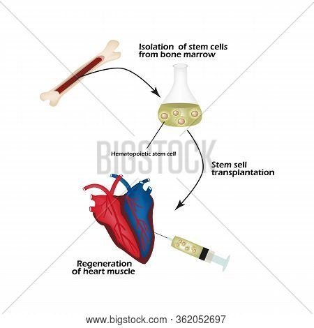 Stem Cells From Bone Marrow Is Used To Regenerate The Cardiac Muscle. Infographics. Vector Illustrat