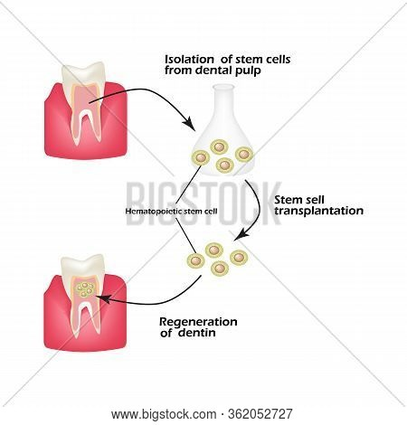 Stem Cells From The Dentin Of The Tooth Is Used To Regenerate Diseased Tooth Dentin. Infographics. V