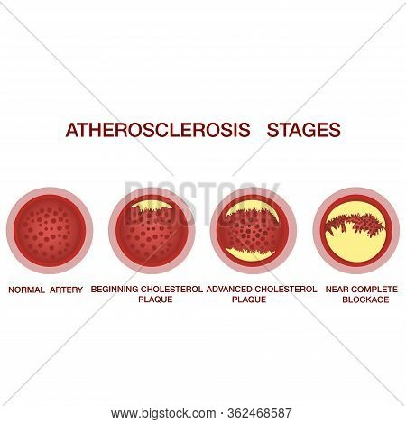 Atherosclerosis Stages.the Accumulation Of Cholesterol In The Blood Vessels. Atherosclerosis