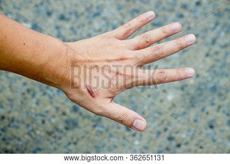 Keloid Scar (hypertrophic Scar) On Man Hand Skin After Accident. Keloidal Scar On Wrist Skin Cause B