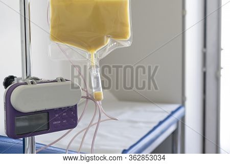 Feeding Pump Medical Device Purple Color To Supplement Nutrition Liquid Food To Tube Enteral Feeding