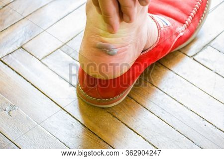 The Man Reaches Out To A Large Calluses Or Blister With Fluid On Foot Near The Heel After Removing T