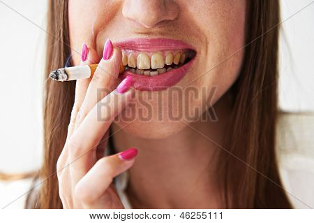 smiley woman with yellow dirty teeth holding cigarette