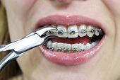 Adult Woman with Orthodontic Treatment. Adjustment auf braces with nipper poster