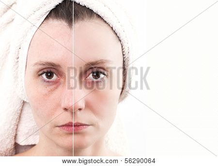 Woman with spotty skin with deep pores and blackhead and healed soft skin poster