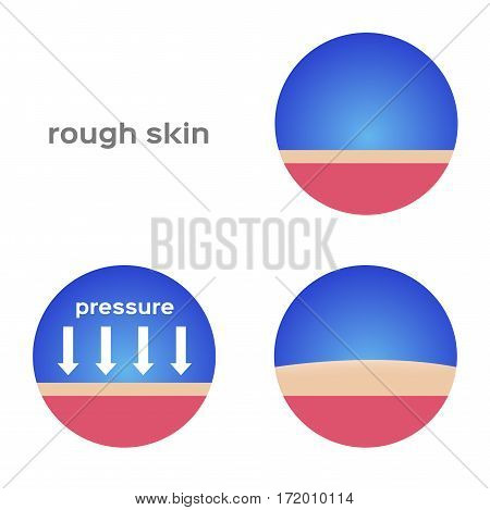 rough skin and callus vector on white background