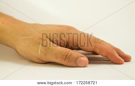 Close-up of a left hand man receiving Acupuncture treatment with silver needles