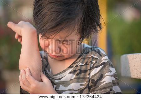 Close up of asian child injured at elbow