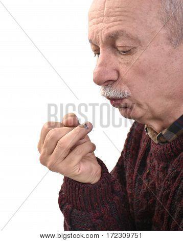 Elderly Man With Subungual Hematoma