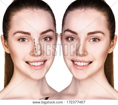 Young woman before and after cosmetic nose surgery