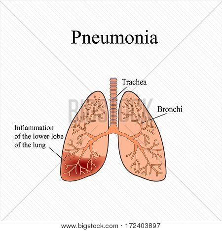 Pneumonia. The anatomical structure of the human lung. Inflammation of the lower lobe of the lung. Vector illustration.