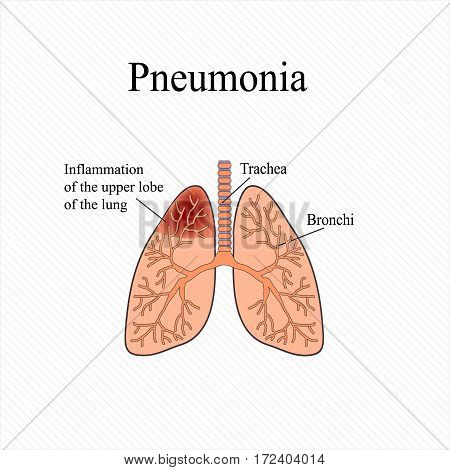 Pneumonia. The anatomical structure of the human lung. Inflammation of the upper lobe of the lung. Vector illustration.