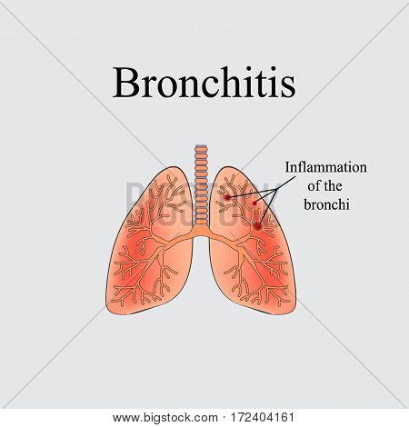 Bronchitis. The anatomical structure of the human lung. Vector illustration on a gray background.