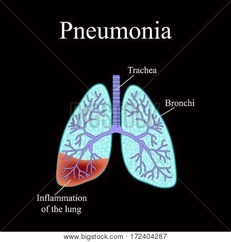Pneumonia. The anatomical structure of the human lung. Vector illustration on a black background.
