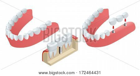 Isometric Tooth human implant. Dental concept. Human teeth or dentures. 3d illustration Isolated on white
