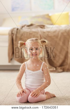 Cute little girl with chickenpox at home