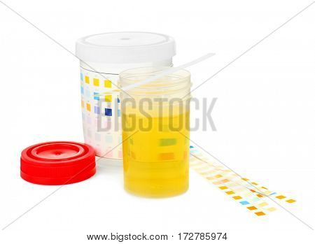 Opened specimen cup of urine and reagent test strips isolated on white