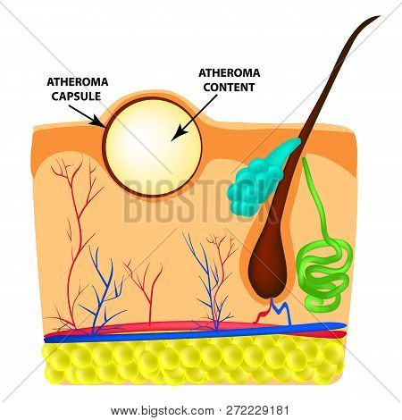 Atheroma Structure. The Structure Of Moles On The Skin. Infographics. Vector Illustration On Isolate
