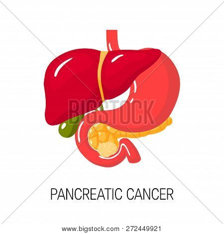 Pancreatic Cancer Concept. Medical Vector Illustration Of Pancreas, Duodenum, Gallbladder, Liver And