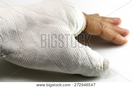 Hand In The Emergency Room After The Fracture Of The Thumb On White Background