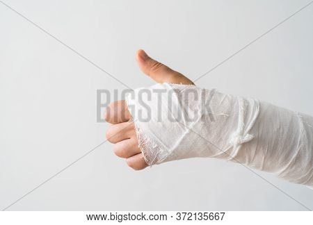The Broken Arm Of A Man In Gypsum Shows The Like With His Thumb. Positive Mood For Early Recovery Fr