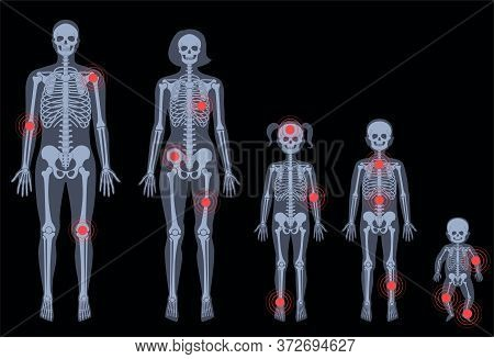 Human Woman, Man, Boy, Girl And Baby Skeleton Pain, Fracture Or Inflammation In Front On X Ray View.