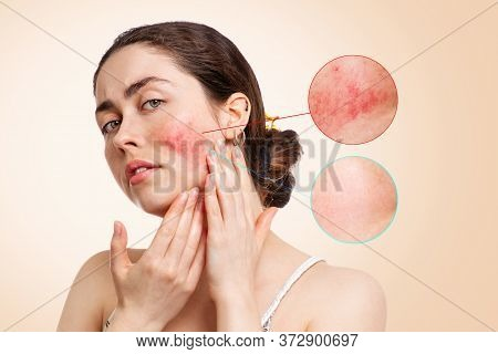 Portrait Of A Young Caucasian Woman Showing Redness And Inflamed Blood Vessels On Her Cheeks.before