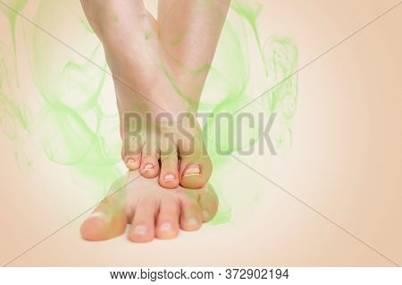 Womens Feet, Placed One On Top Of The Other, Which Are Indicative Of Nail Inflammation And A Stinky