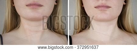 Photos Before And After Plastic Surgery To Remove Venus Rings. Contour Plastics Of The Neck, Mesothe