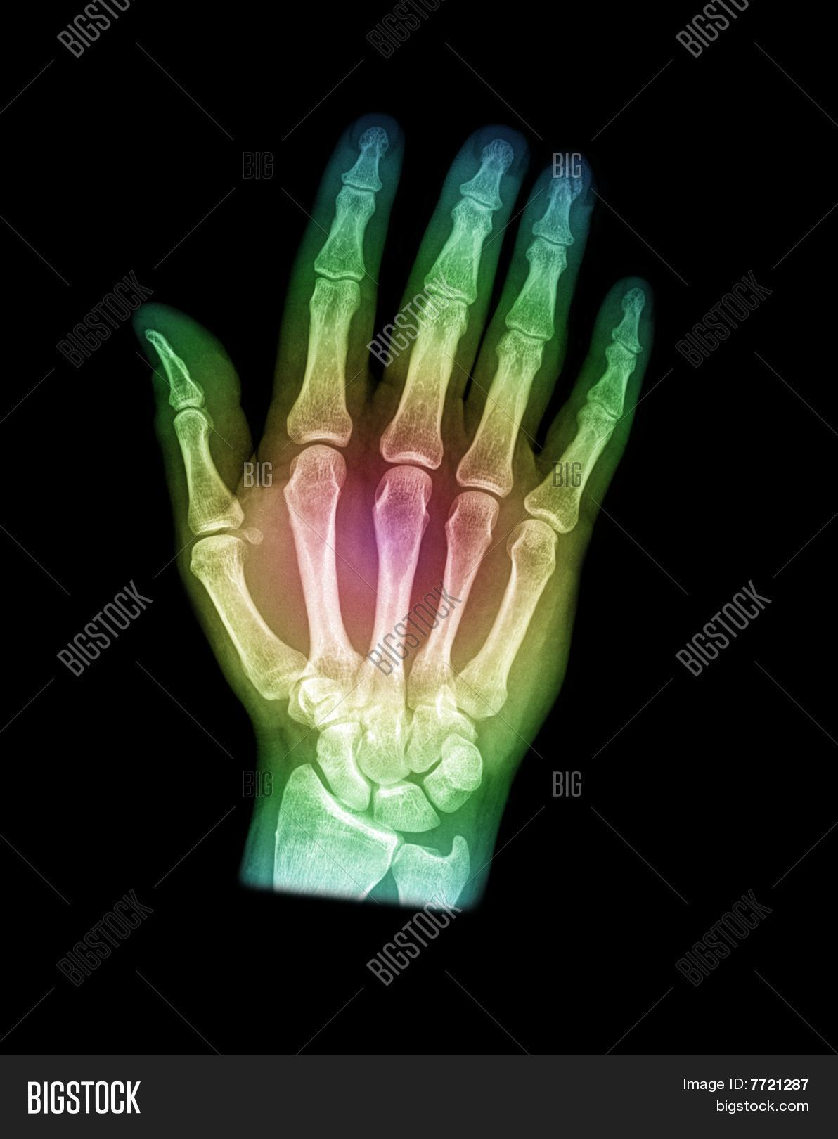 Colorful X Ray Hand Image Photo Free Trial Bigstock