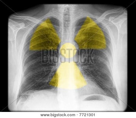 x-ray of a human chest with radiation sign poster