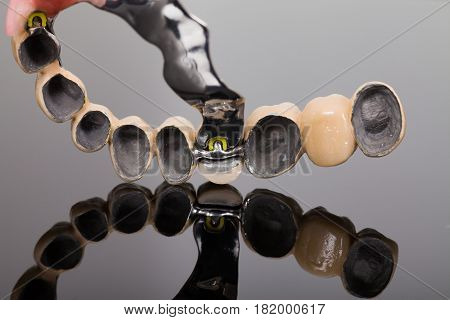 Skeletal Prosthesis -  Art Of Dentsitry