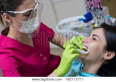 Close-up portrait of a female patient at dentist in the clinic. Teeth whitening procedure. Doctor is puting dental retractor