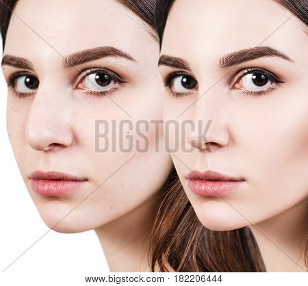 Young woman before and after cosmetic nose surgery over white background.