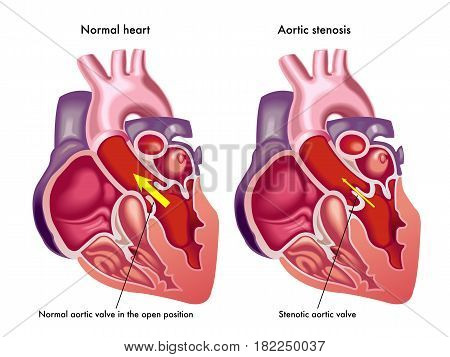 vector medical illustration of the symptoms of aortic stenosis