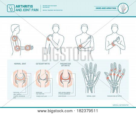 Arthritis and joint pain infographic anatomic illustration of an inflammed hand and arm