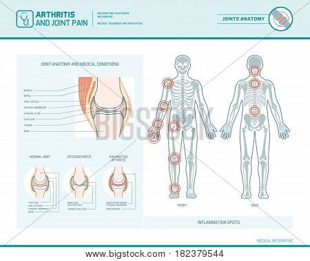 Rheumatoid arthritis osteoarthritis and joint pain infographic with inflammation spots and anatomical illustration