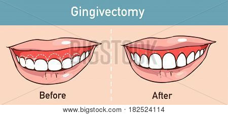 vector illüstration of a  Gingivectomy  before and after