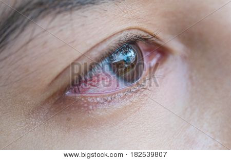 Closeup eye of asian woman with broken capillaries in the eye