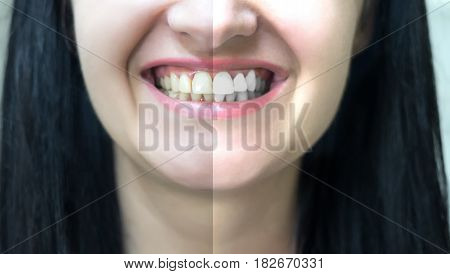 concept of teeth whitening before and after
