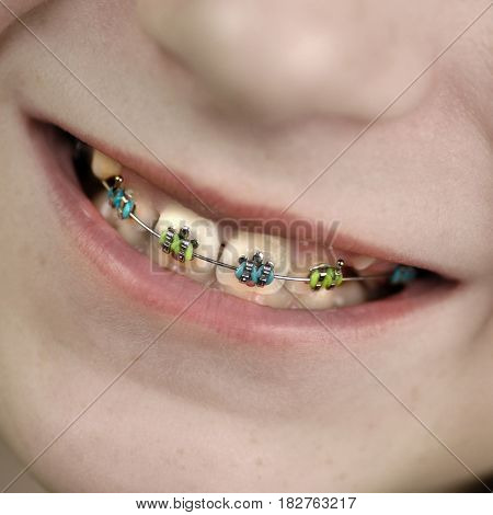 Braces on teeth of young girl orthodontics